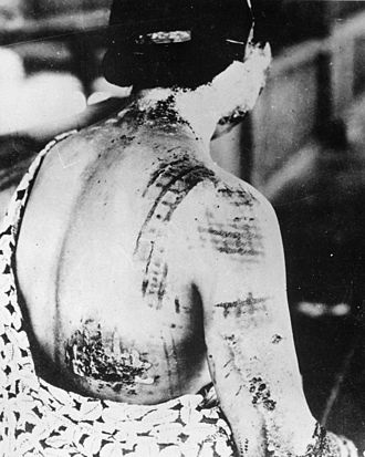 Hiroshima women - radiation burns